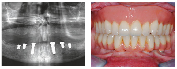 Master Course on Implant Therapy in Edentulous Patients: A Clinical Challenge